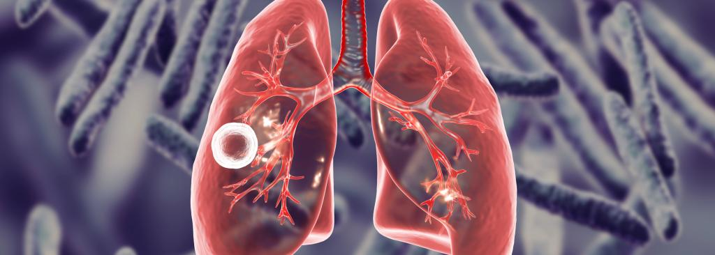 Tuberculosis on the lungs